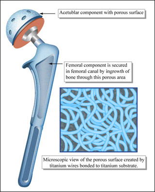 Drawing of hip implant, highlighting porous surfaces for tissue ingrowth.