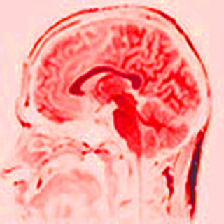 A red tinted MRI of an adult human brain.
